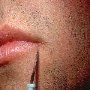 HPV-vacina-tem-cura-no-homem-o-que-%C3%A