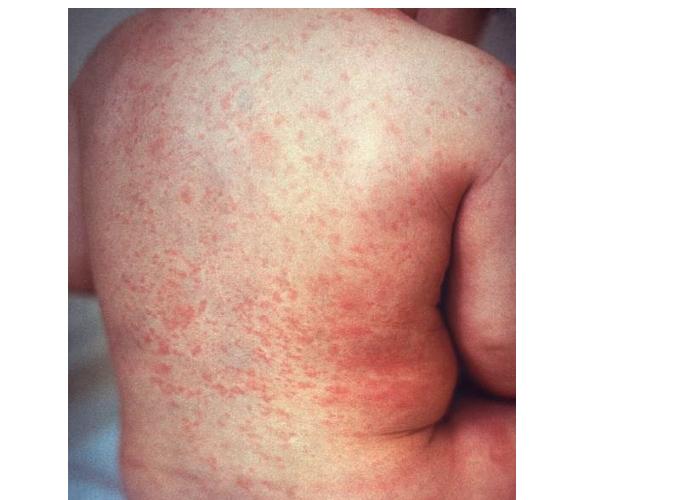 benigna parvovirose