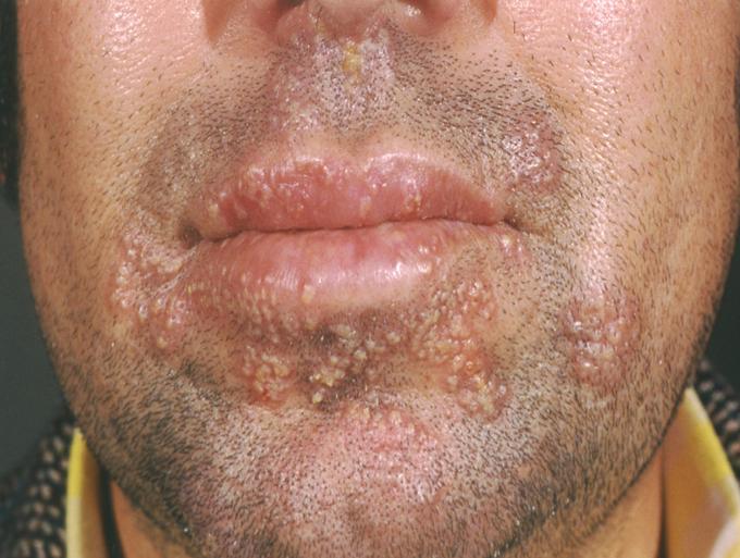 simples mucosa ceratite herpetica