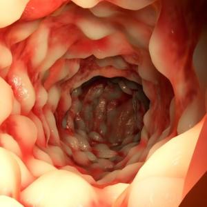 Crohn-fotos-pode-matar-alimenta%C3%A7%C3