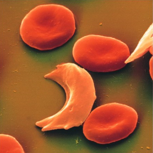 anemia-falciforme-tra%C3%A7os-de-%E2%80%