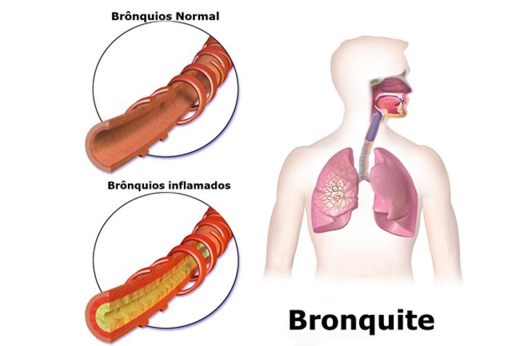 Bronquite causas remédio caseiro