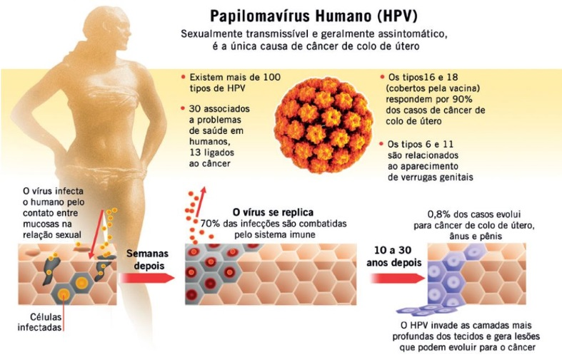 Hpv o que como se pega a transmiss o e tratamento - Hpv contagio bagno ...