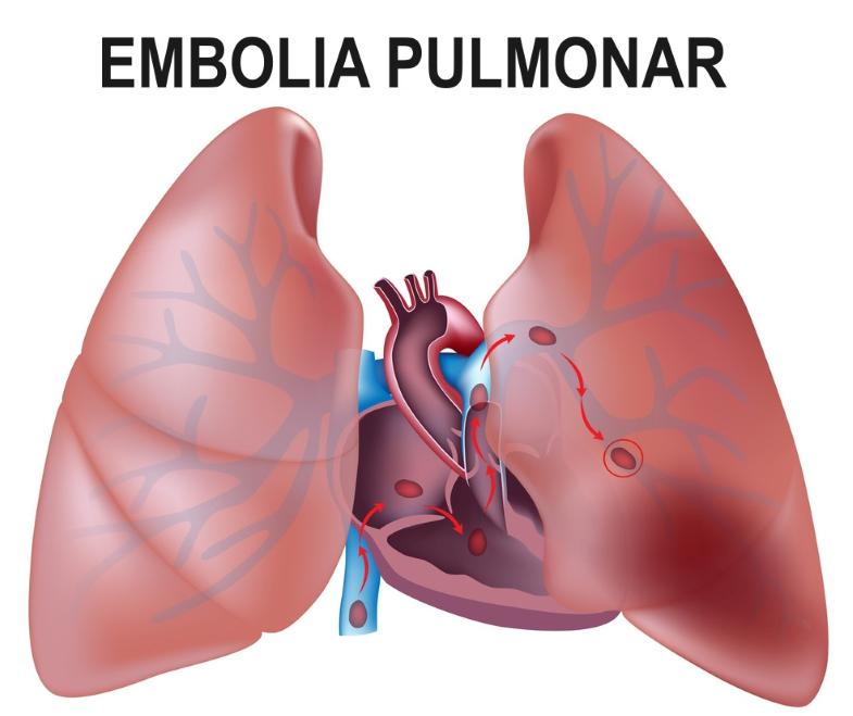 infarto pulmonar tromboembolismo pulmonar