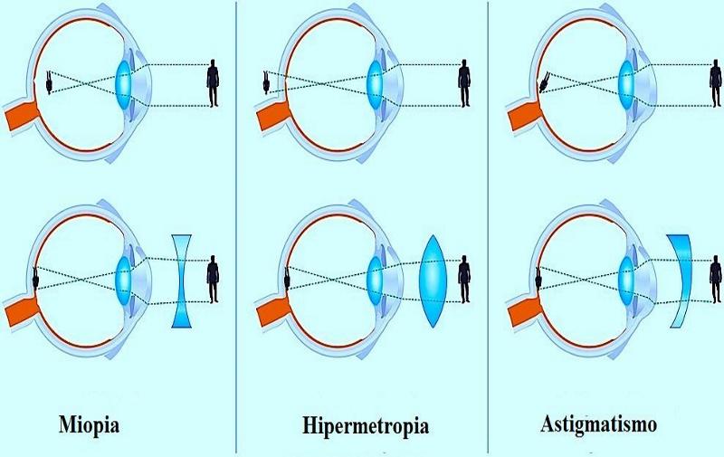 regular irregular composto simples e complexo  hipermetrope  misto e rápido contra a regra