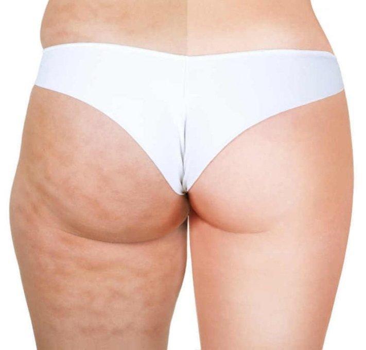 o que causa nas pernas refrigerante estrias infecciosa alimentos que