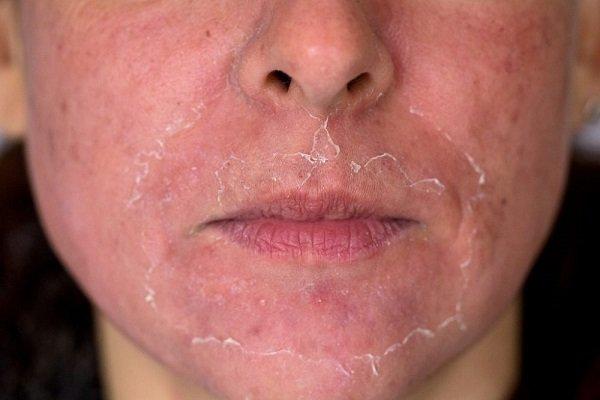 Mary Kay acne superficialprofundo benefícios