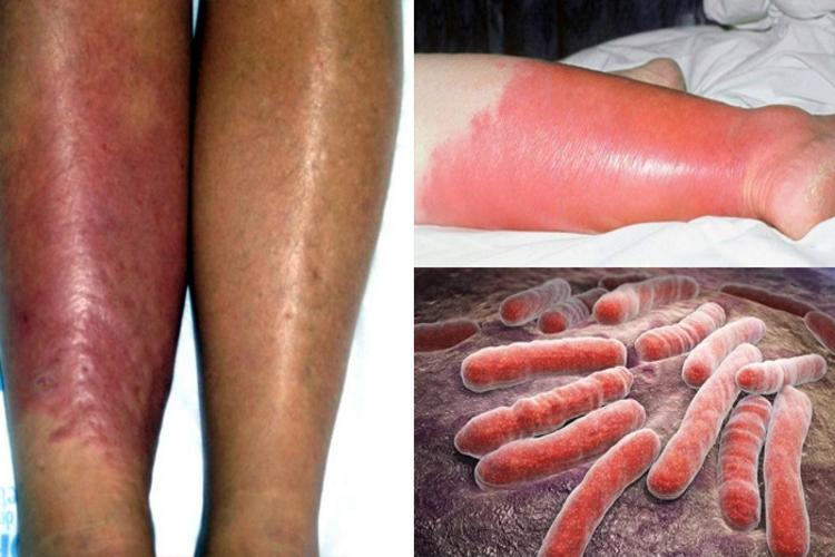 tratamento-contagiosa-sintomas-fotos