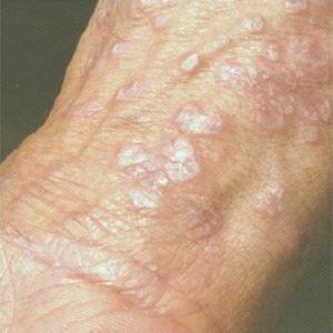 Fungos no pênis tipos sintomas