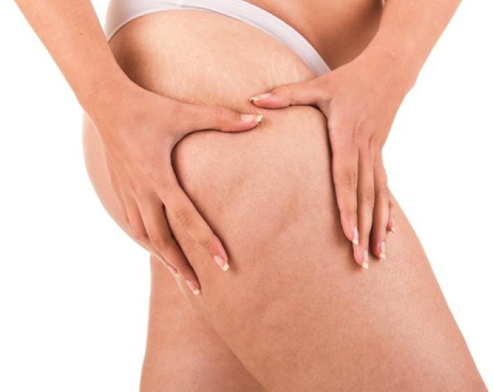 estrias remédio nas pernas grau 3 gordura localizada comprimido creme com gengibre